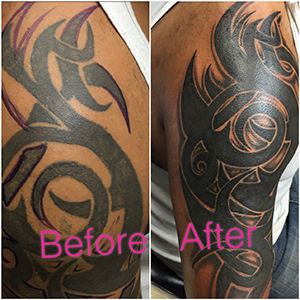 before after tattoo cover